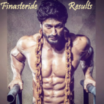 Finasteride Results